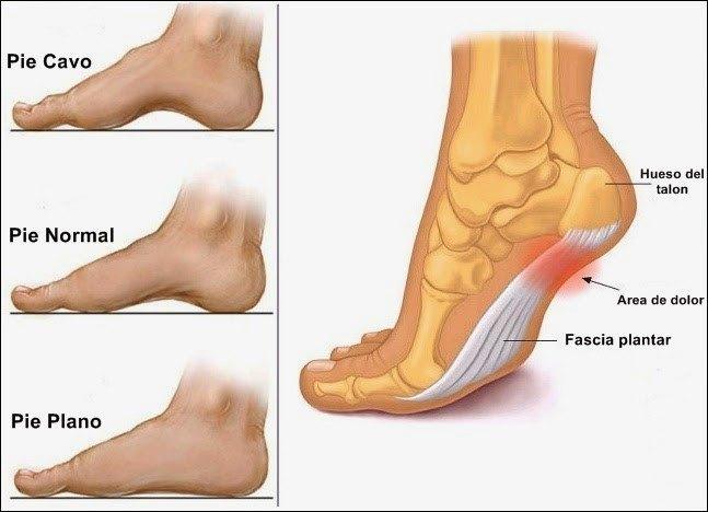 Resultado de imagen para tipos de pies arco plantar