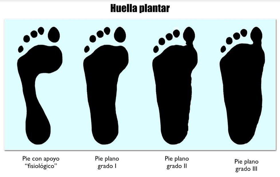 huella plantar